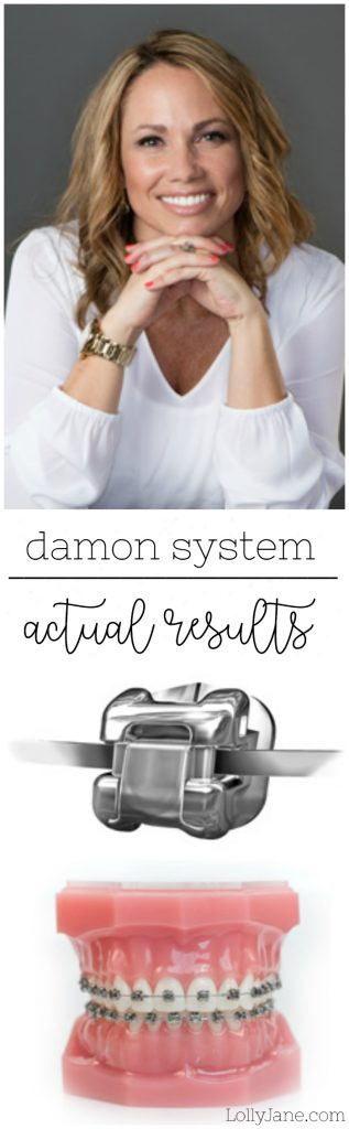 Sistema Damon Braces